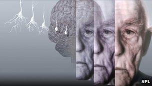 Celfyddyd graffig yn dangos ymennydd dyn oedranus sy'n dioddef o glefyd Alzheimer