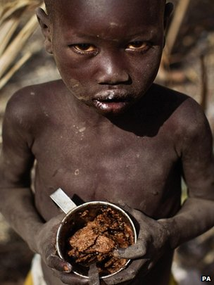 Starving African boy