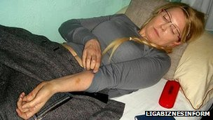 In photos published by the website Liga, former Ukrainian Prime Minister Yulia Tymoshenko is shown displaying bruises