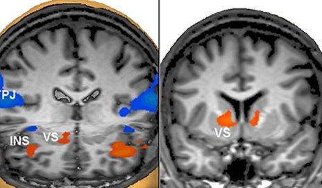 MRI scan results