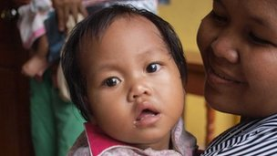 A patient at the Children's Fund Clinic on the outskirts of Phnom Penh