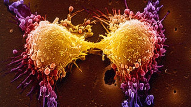 _63224405_prostatecancerspl A homoeopathic approach to cancer