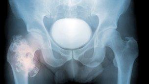 Call For More Bone Cancer Checks Bbc News