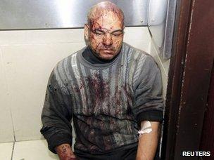Injured man in hospital (28 November 2012)