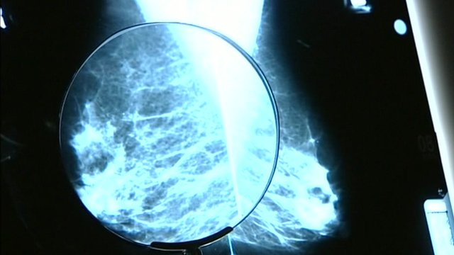 Breast x-ray