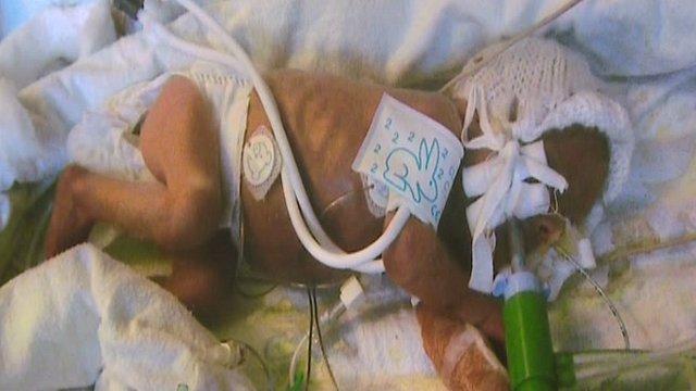 Premature baby Seth Buckland