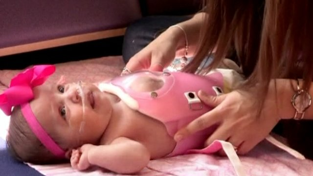 Baby Audrina in her special protective chest shield