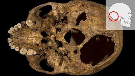Base of Richard III's skull