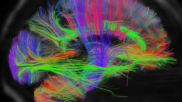 Side view of the wiring map of Pallab Ghosh's brain