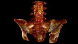 CT scan of mummy