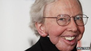Film critic Roger Ebert arrives to attend the Webby Awards in New York in this file photo taken 14 June 2010
