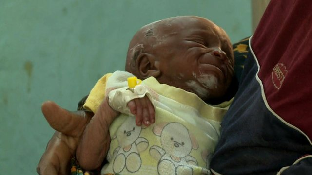 A baby suffering from lead poisoning