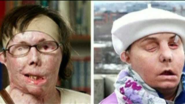 Carmen Blandin Tarleton, before and after the transplant