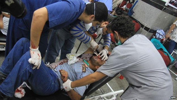 Injured Morsi supporter treated at field hospital