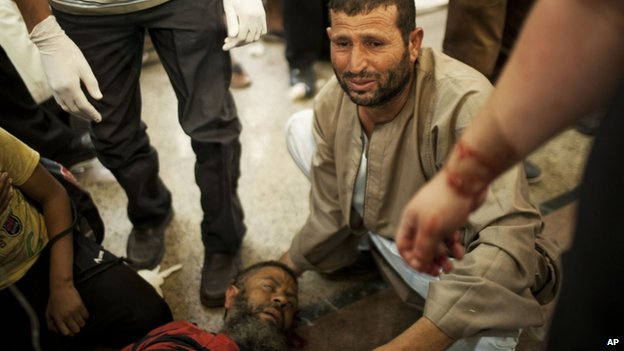An Egyptian man sits beside his comrade, injured during clashes with security forces, 27th July