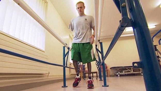 Mark Ormrod with his new bionic prosthetics