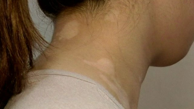 White patches of skin on neck