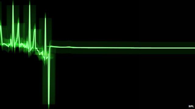 ECG (electrocardiogram) trace