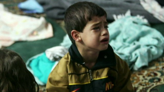 Child after alleged chemical weapons attack
