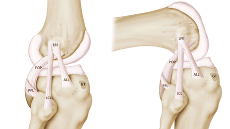 Anatomical sketch of ligaments of the knee