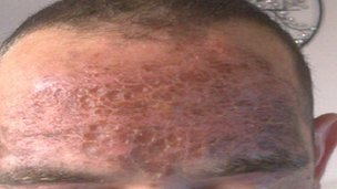 Victim's forehead after acid attack