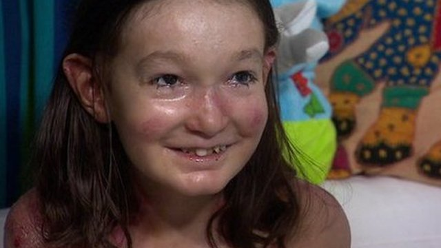 Sohana Collins who suffers from Epidermolysis bullosa (EB)