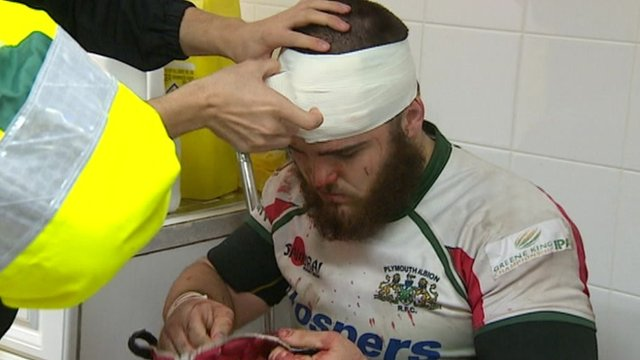 Plymouth Albion prop Tom Harrison receives treatment for a cut to the head