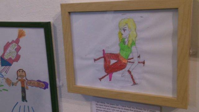 Arthritis exhibition