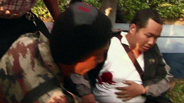 Man with gunshot wound in Bangkok