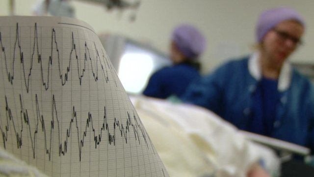 EEG trace on paper in foreground, woman in scrubs in the background