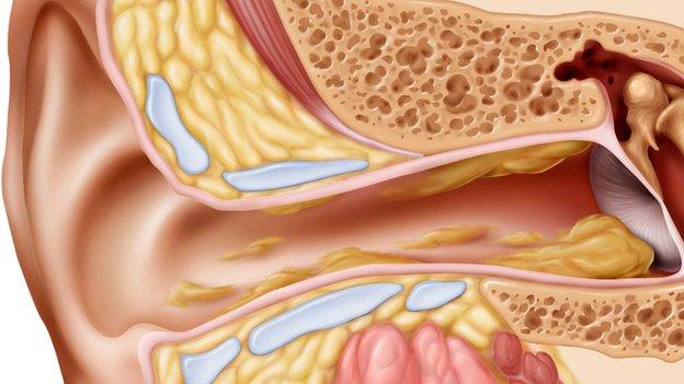 The cul-de-sac of the ear canal