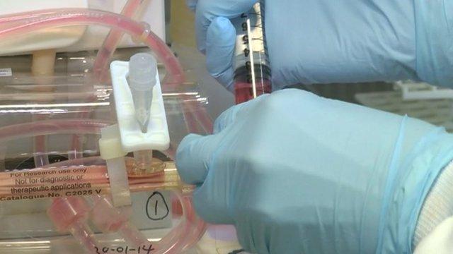 Leukaemia research