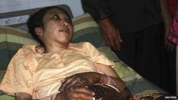 Indonesian domestic helper Erwiana Sulistyaningsih lies in a bed whilst being treated at a hospital in Sragen, Indonesia's Central Java province, 17 January 2014