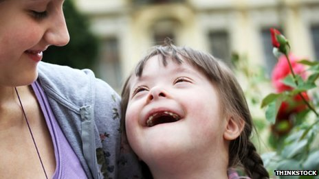 Girl with Downs syndrome