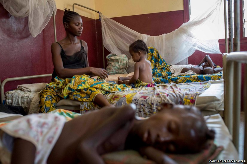 A mother tends to her child who is suffering from malnutrition at a paediatrics hospital in Bangui, Central African Republic