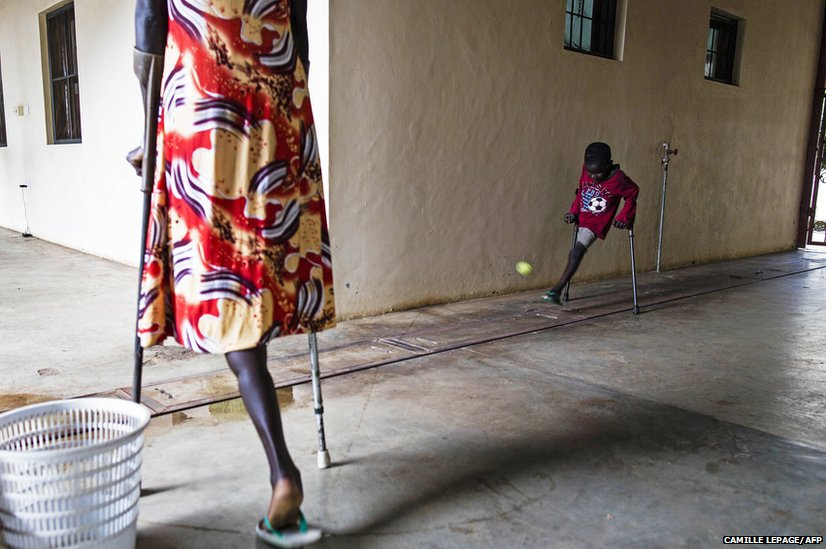 Seven-year-old amputee Deng plays with a ball at the Rehabilitation Centre of Juba, South Sudan