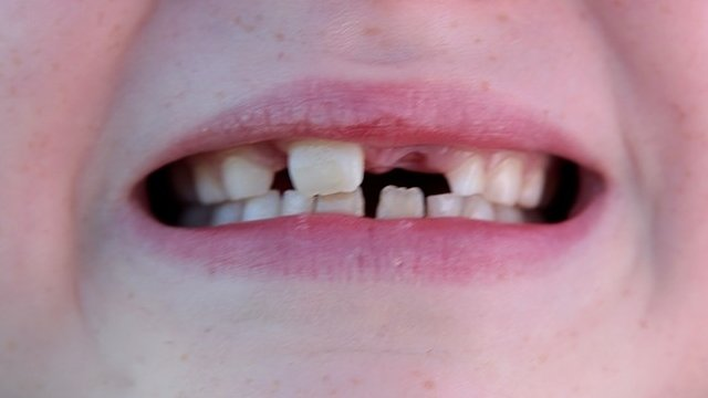Child's mouth showing teeth
