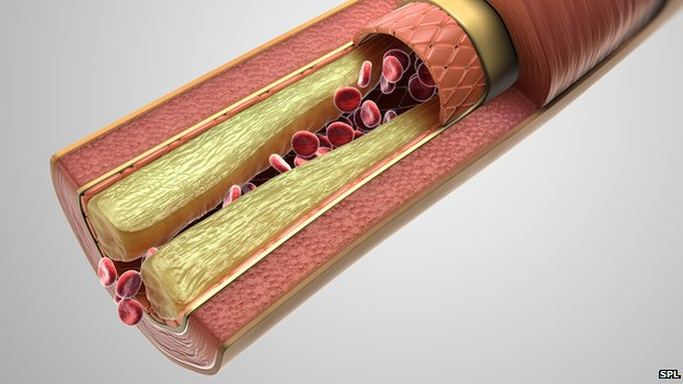 Cross section of an artery