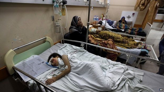 Palestinian Beisan Dhahir, 7, sleeps at Shifa hospital in Gaza City where he is recovering after being injured in an airstrike on his home - 20 July 2014