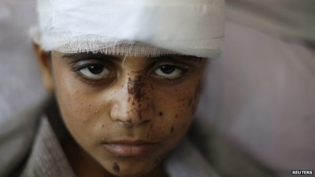 Palestinian boy Mahmoud al-Ghol