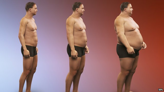 Being Overweight Or Obese Linked To 10 Common Cancers Bbc News