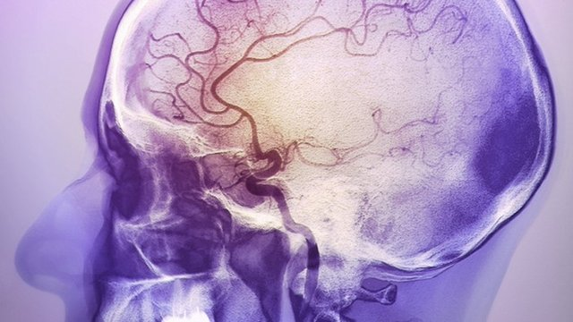 Coloured angiogram of the brain of a 48 year old patient after a massive cerebrovascular accident (CVA), or stroke