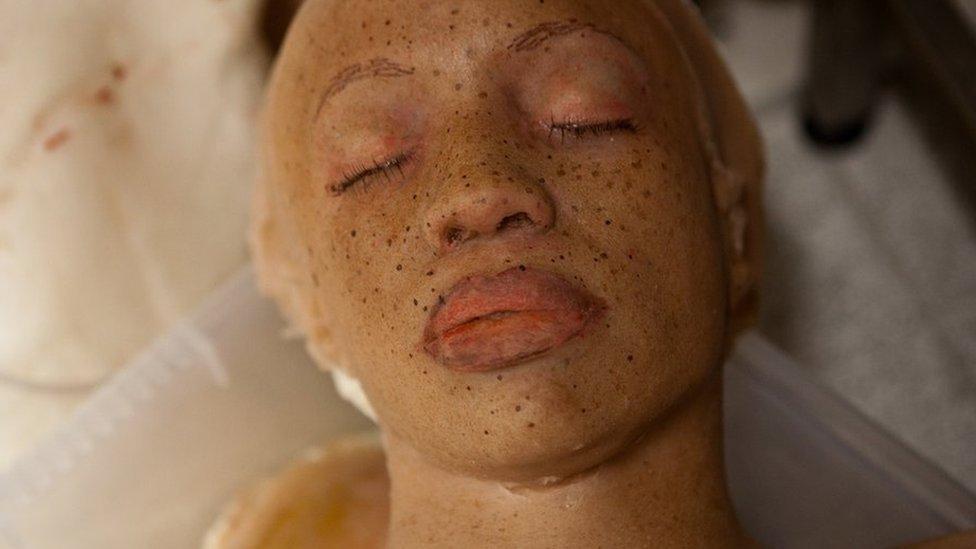 Dydi'r claf yma ddim yn edrych yn dda o gwbl // This patient doesn't look at all well!