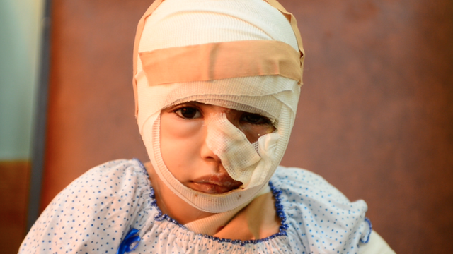 A burns patient at Gaza's al Shifa hospital