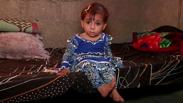 Child with polio, Pakistan