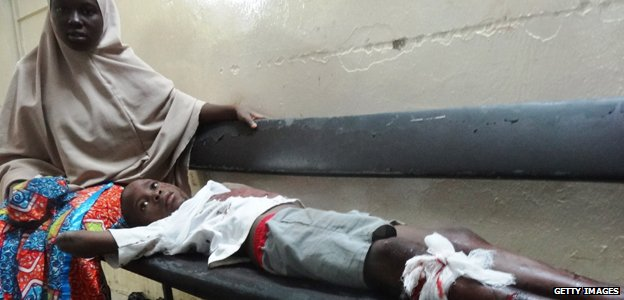 A boy injured in the Boko Haram attack on the central mosque in Kano