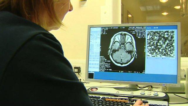 Clinician reviews brain scan