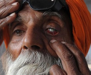 Man with cataract