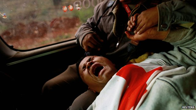 Moe Kyaw Than, 45, a volunteer with the Myanmar Red Cross Society reacts after he was wounded when the convoy he was in, was fired upon on 17 February 2015
