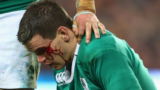 Ireland's Jonathan Sexton waits for treatment after clashing heads with France's Mathieu Bastareaud